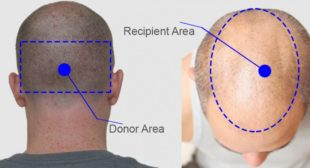 Hair Transplant – The Need, Success Rate and the SIde Effects