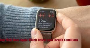 How Well Does Apple Watch Detect your Health Conditions – 2021Directory