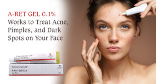 A Ret Gel Is the Best-Selling Generic Acne Drug on PharmaExpressRx