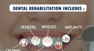 Excellent teeth replacement Dental Hospital in Chennai