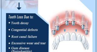 Paediatric dentist in Chennai – Impact dental care
